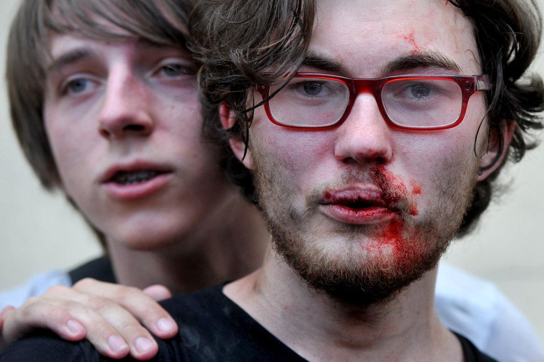 Vítima do terror policial contra gays em Moscou