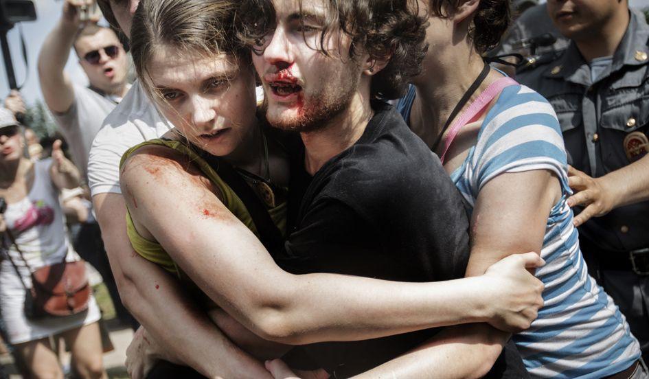 Casal hetero agredido em manifestação pró-LGBT na Líbia