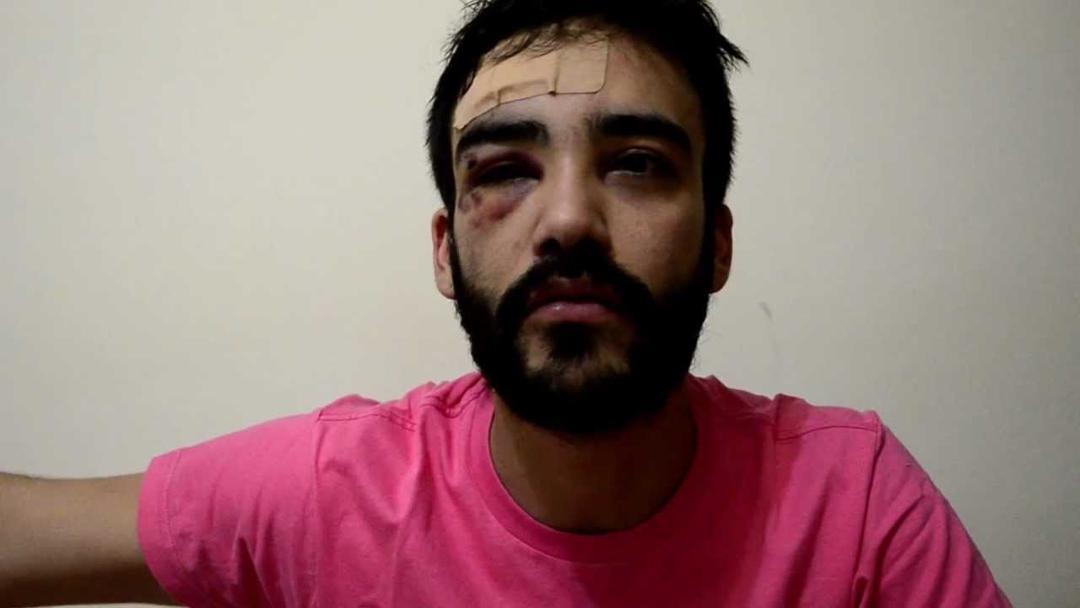 Estudante André Baliera agredido na USP por ser homossexual