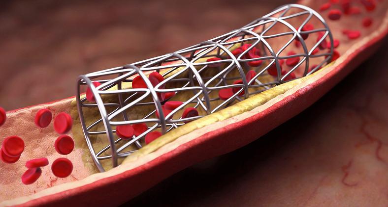 As possibilidades de aplicações das ligas com EMF são bastante numerosas, como stents utilizados em cirurgias cardiovasculares. (Verywell/Divulgação)