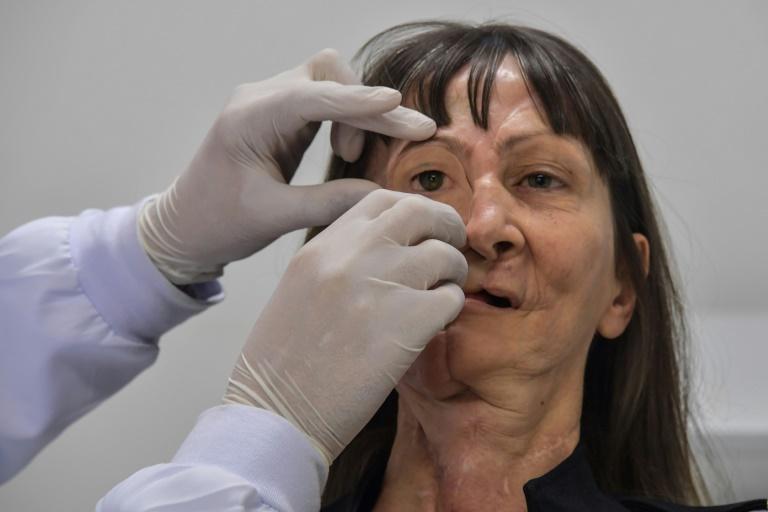 Após perder um olho e parte da mandíbula por causa de um câncer, Denise Vicentin ganhou um novo rosto graças a uma prótese desenhada digitalmente