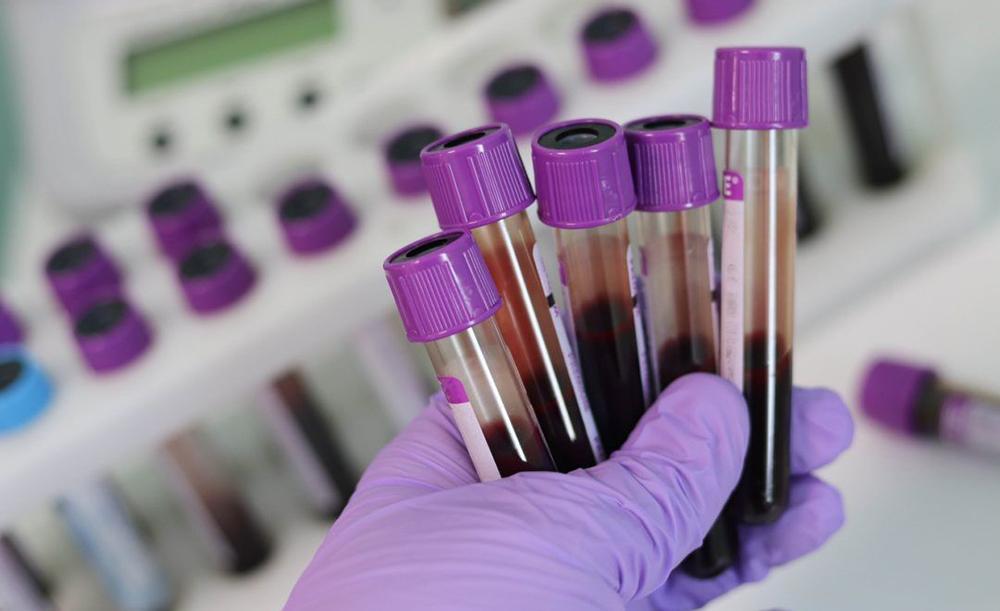 Pesquisadores da USP e da UFSCar revelam que a molécula sTREM-1 pode servir como um 'termômetro biológico' capaz de orientar a tomada de decisão pelas equipes de saúde