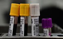 Hemorio inicia testes com plasma sanguíneo no tratamento de Covid-19 (Fernando Frazão/ABr)