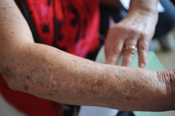 Com exceção de Sergipe, todos os estados do país registraram queda em biópsias (ABr)
