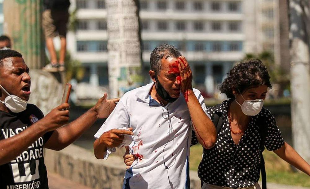 A ação da PM nos atos contra o presidente Bolsonaro em Recife deixou duas pessoas cegas