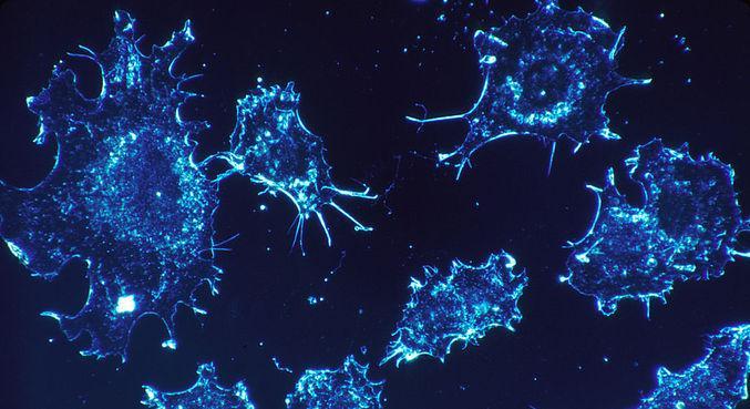 Achado pode ajudar no tratamento contra o câncer