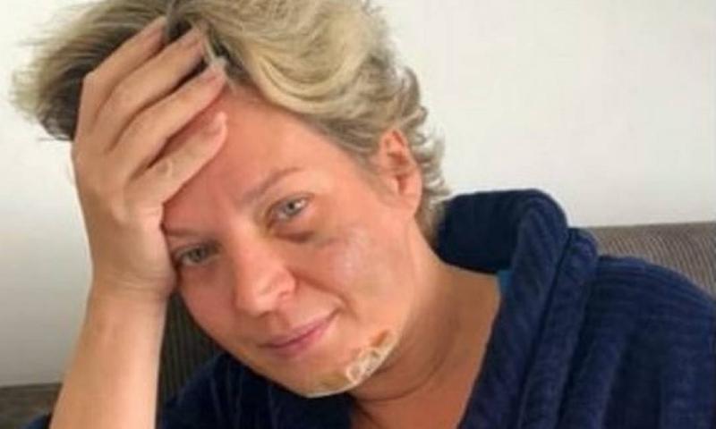 A parlamentar conta que acordou no domingo (18) em uma poça de sangue e com ferimentos pelo corpo no chão do closet no apartamento funcional onde mora em Brasília