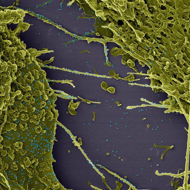 Os prolongamentos de membrana, chamados de filopódios, podem ser observados por meio de ampliação de 200 mil vezes. - Fiocruz/Inmetro
